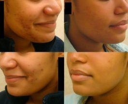 W czym pomoże dermatolog